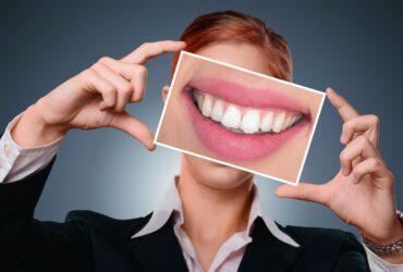 Izbeljivanje zuba Beograd