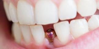 Ugradnja zubnog implantanta